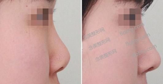 硅胶隆鼻的风险规避优缺点和适宜人群