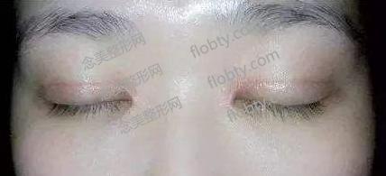 割双眼皮后切口疤痕增生概率高吗?