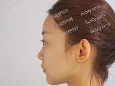 韩式隆鼻术前