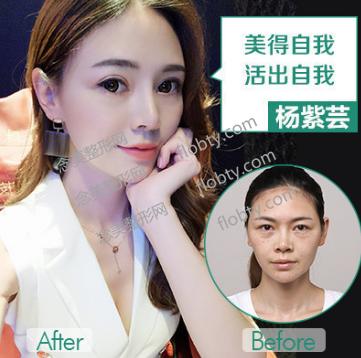 重庆华美整形医院隆鼻+双眼皮案例: