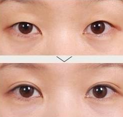 深圳割双眼皮案例前后对比