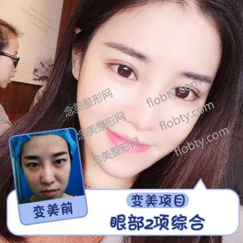 上海百达丽医疗美容门诊部眼综合案例: