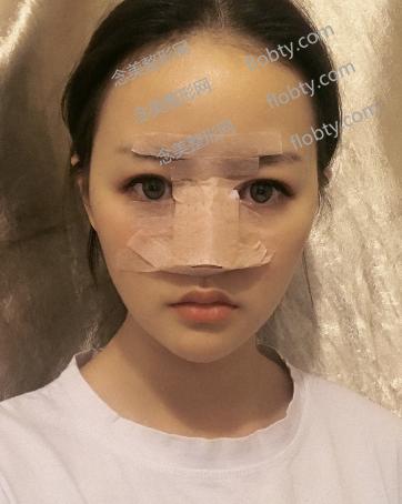 鼻综合术后的照片