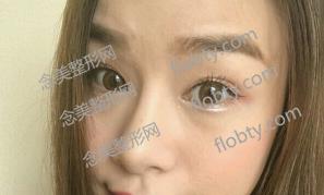 重庆华美割双眼皮术前