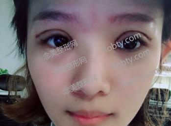 重庆华美双眼皮失败修复术后
