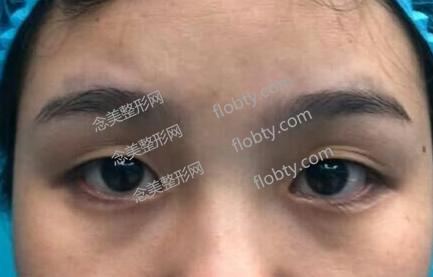 上海百达丽割双眼皮术前