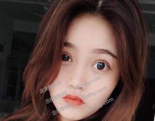 上海百达丽割双眼皮术后