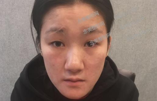 重庆割双眼皮和隆鼻术前