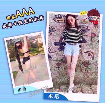 成都艾米丽医疗美容门诊部大腿吸脂案例: