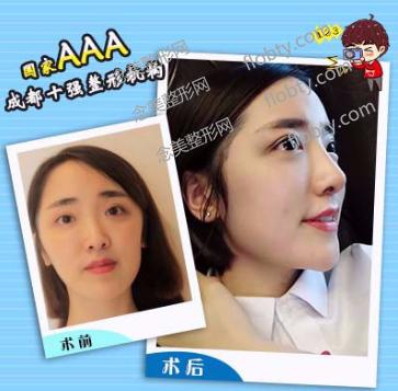 成都艾米丽医疗美容门诊部隆鼻案例: