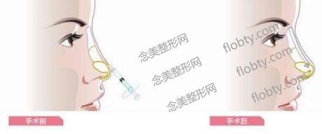 大分子玻尿酸隆鼻后多久补第二针?