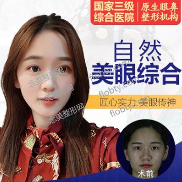 四川友谊医院整形外科眼综合案例: