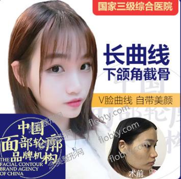 四川友谊医院整形外科长曲线下颌角整形案例: