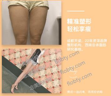 成都天姿医疗美容门诊部大腿吸脂案例: