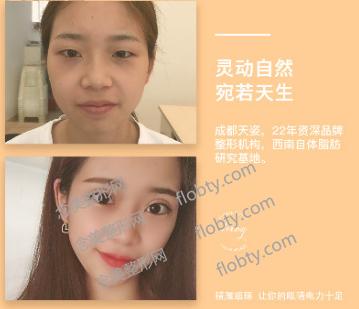 成都天姿医疗美容门诊部眼综合案例: