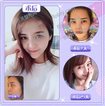 成都百龄驻颜医学美容门诊部鼻综合案例: