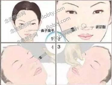 玻尿酸注射隆鼻多久稳定