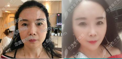 牟艳萍医生注射抗衰老案例对比:
