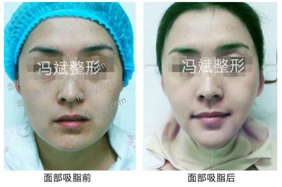 北京东方和谐冯斌医生面部吸脂案例