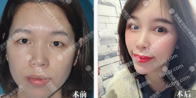 深圳富华医疗美容医院双眼皮案例: