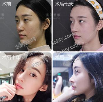 北京沃尔医疗美容医院隆鼻案例: