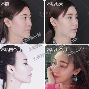 北京沃尔医疗美容医院鼻综合案例: