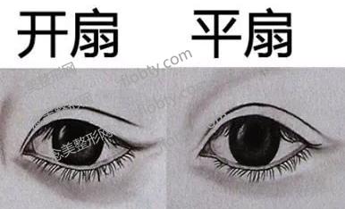 平扇形和开扇形双眼皮去区别