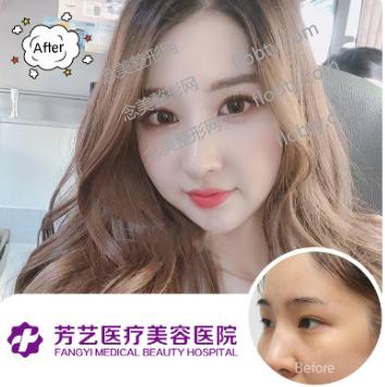 郑州芳艺整形医院眼综合案例: