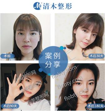 北京清木医疗美容医院面部吸脂案例: