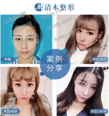 北京清木医疗美容医院面部脂肪填充案例: