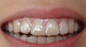 杭州牙齿整形价格表