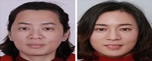 呼和浩特京美医院面部脂肪填充案例: