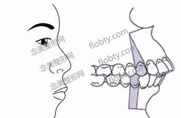 骨性龅牙手术