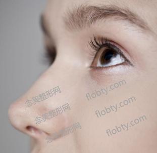 驼峰鼻矫正费用