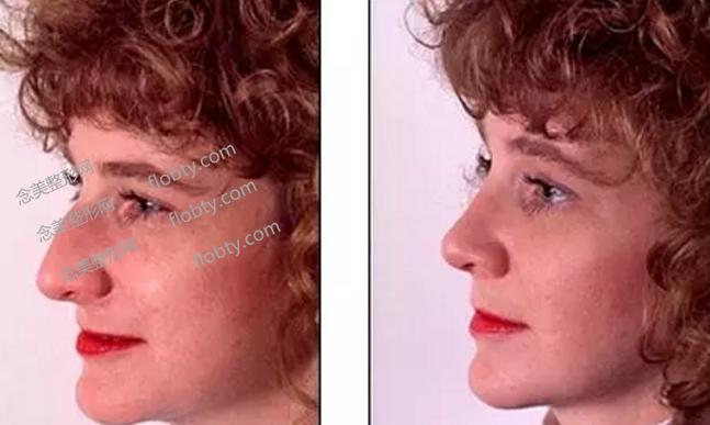 驼峰鼻矫正对比