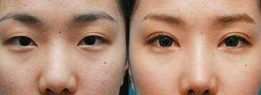 北京八大处割双眼皮