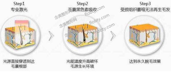 北京激光脱毛价格