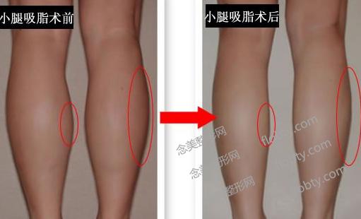 长春小腿吸脂减肥价格
