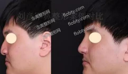 刘彦军鼻子修复很贵吗