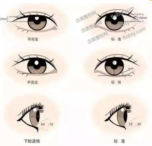 九院双眼皮专家