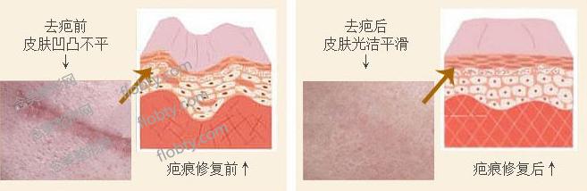 上海九院除疤挂什么科