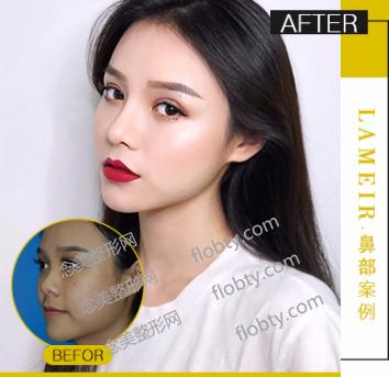 深圳蒳美迩医疗美容医院隆鼻案例
