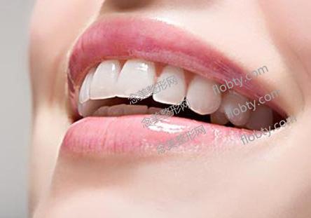 南京康美牙科整形价格表