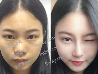 鼻综合恢复期照片