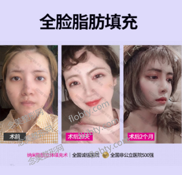 长沙华韩华美整形医院面部脂肪填充案例: