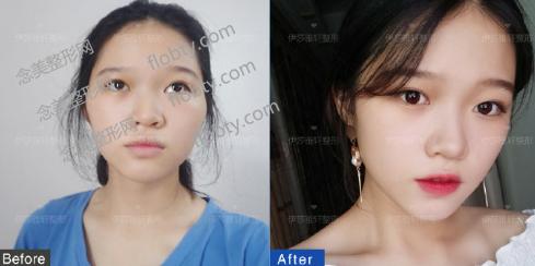 北京伊莎雅轩医疗美容医院面部脂肪填充案例