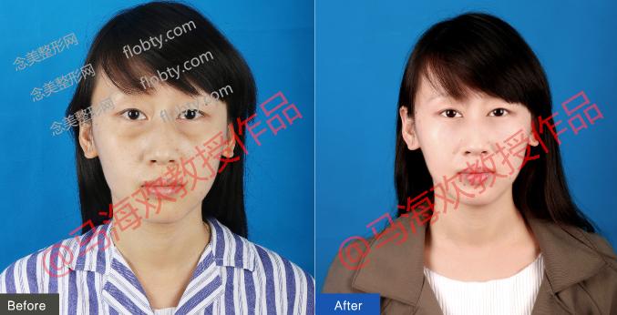 北京伊莎雅轩医疗美容医院去眼袋案例