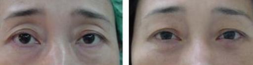 脂肪填眼窝一年后图片