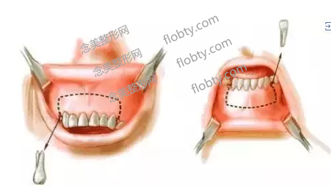 牙槽骨突出手术原理