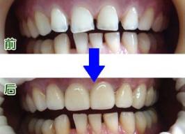 牙齿稀疏牙缝大怎么办
